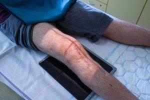 injured knee x-ray
